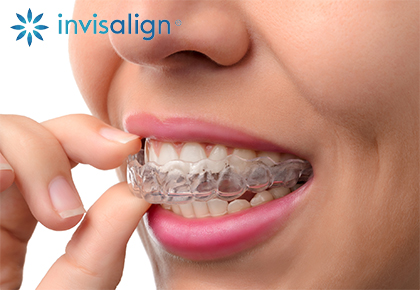 Invisalign braces in Annandale, VA